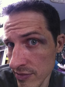 I got a killer shiner rolling with a guy, Jake, who I believe is on an upcoming season of The Ultimate Fighter.